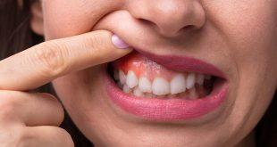 افضل مضاد حيوي طبيعي للاسنان وللاطفال وللحلق