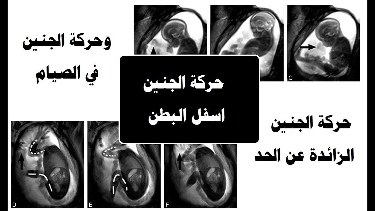 حركة الجنين اسفل البطن هل تدل على نوعه
