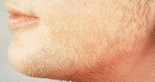 اسباب ظهور شعر الوجه الزائد بالتفصيل الممل وكيفية علاجه