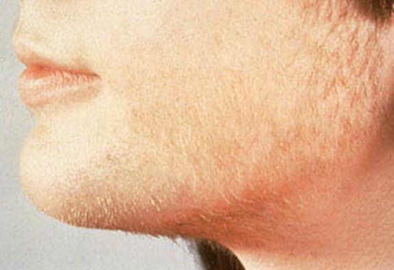 اسباب ظهور شعر الوجة الزائد بالتفصيل الممل و طريقة علاجه