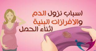 اللي نزل منها دم بني وهي في الشهر الاول تدخل ربي يسعده